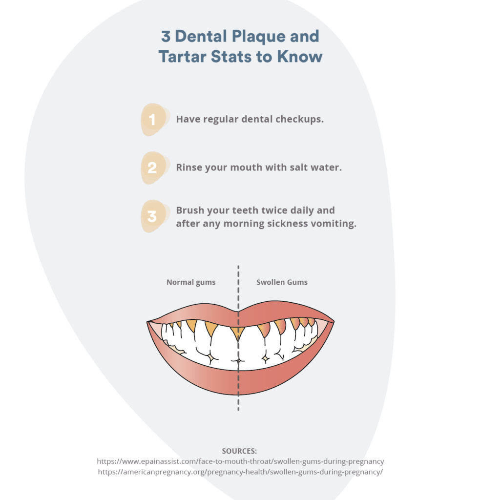 Dental plaque and tartar: why you should go to the dentist
