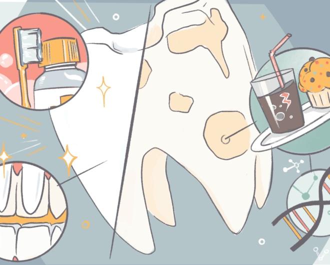 brown spots on teeth