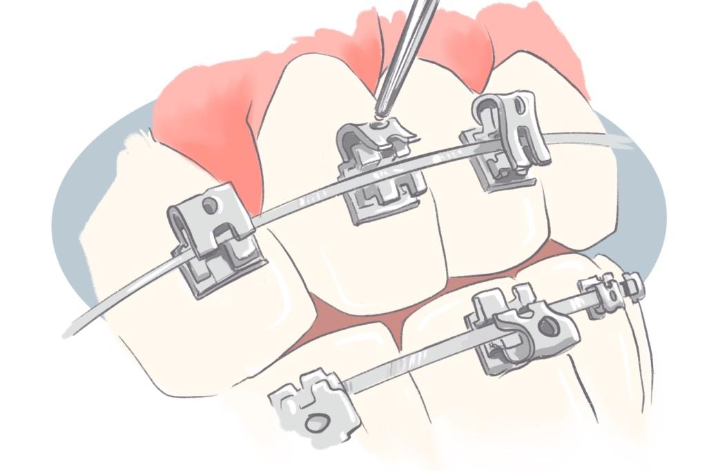self litigating braces