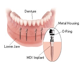Parts and cost of mini dental implant