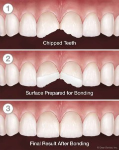 Tooth bonding process: Before and After