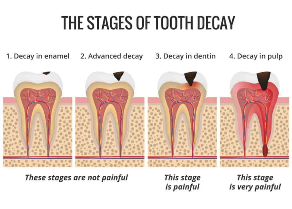 Stages of a cavity and tooth decay.